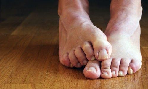 Ефективне лікування оніхомікозу нігтів