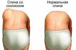 Спина в нормі і при сколіозі